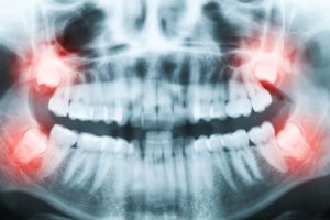 wisdom tooth extraction smiles by the sea hampton nh